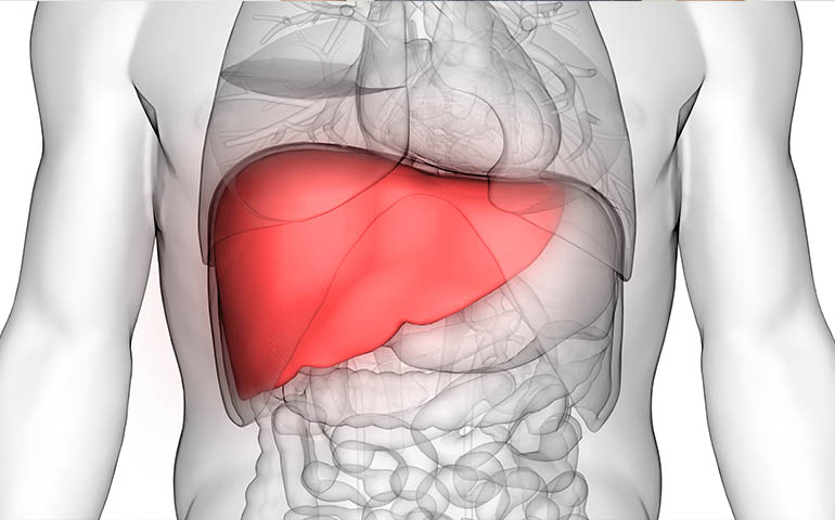Fatty Liver Disease Guide